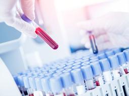 Teste de sorologia pós-vacina – Por que é importante avaliarmos a população